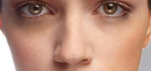 Göz Altı Morluklarına Ne İyi Gelir ?